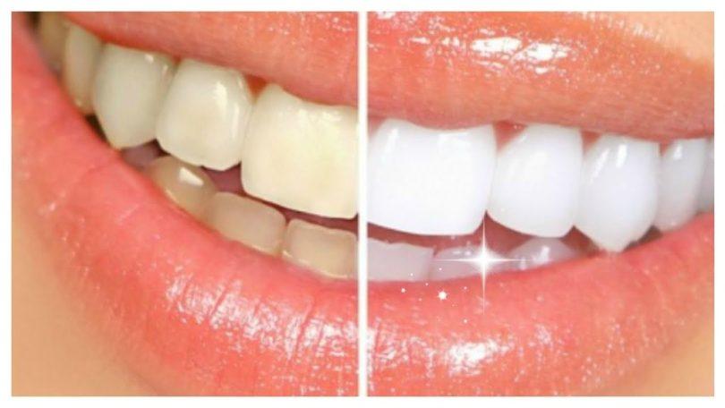 bijeli-zubi-slike