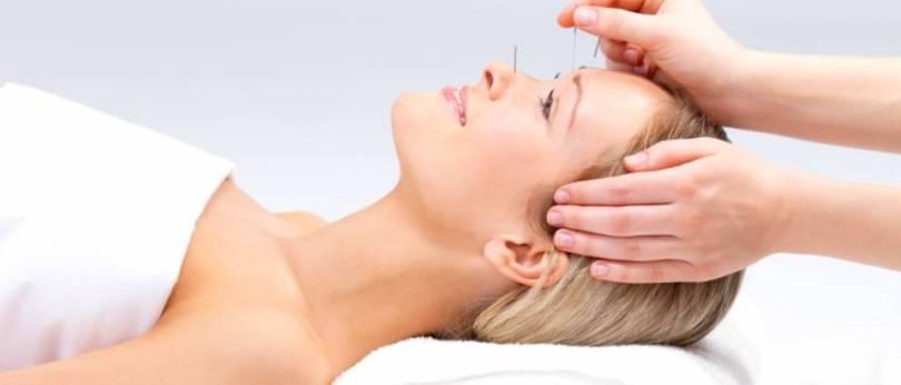 migrene-u-trudnoci-lijecenje-akupunktura