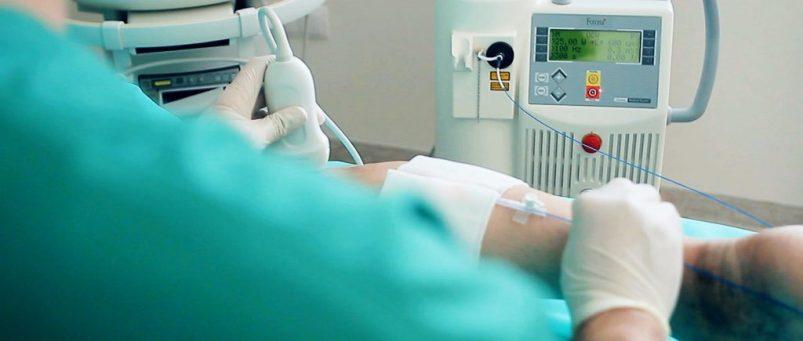 operacija vena