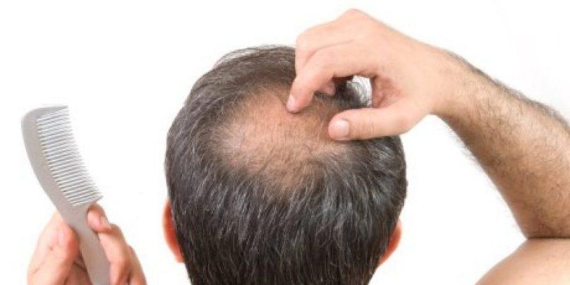 seboreja vlasista i opadanje kose