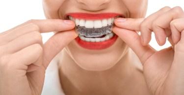 FullALign ortodontska terapija providne proteze za ispravljanje zuba