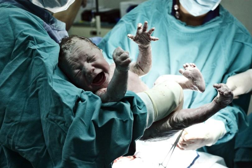 indijski fenomen trudna beba