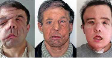 dvije transplantacije lica