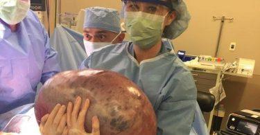 oktori joj govorili da drži dijetu a ona imala cistu od 22 kilograma