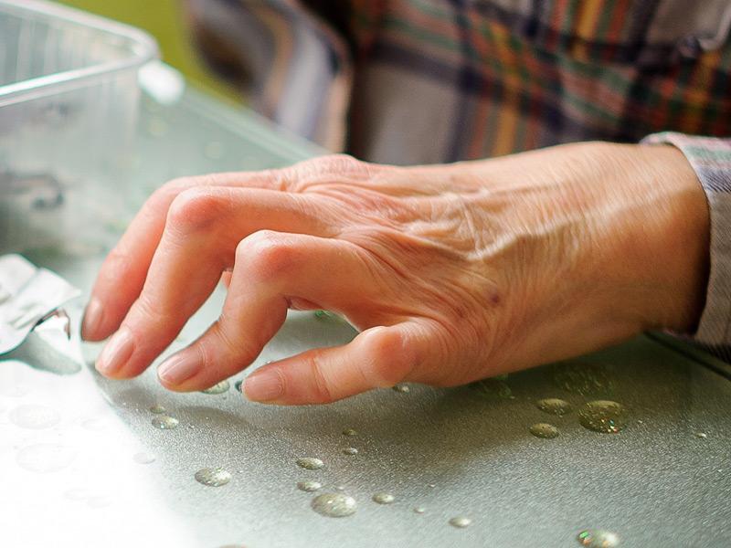 komplikacije reumatodni artritis