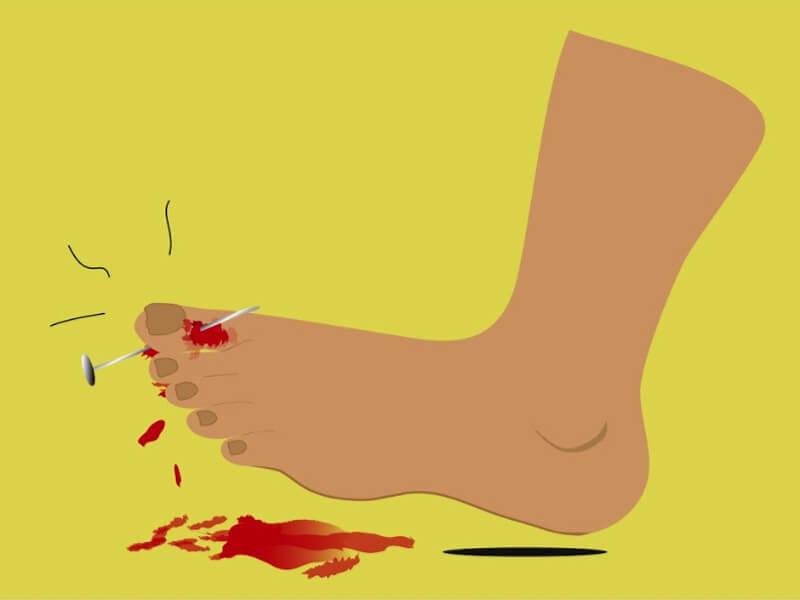kako zaustaviti krvarenje u 10 sekundi