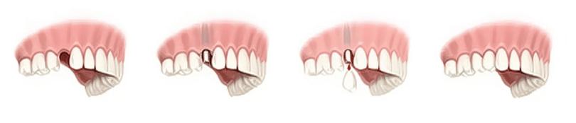 Jedan zub na implantatu 3
