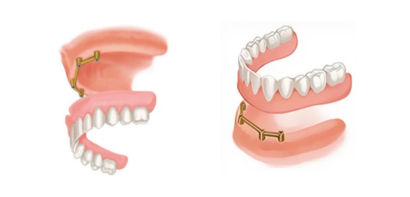 Proteza na implantatima 5