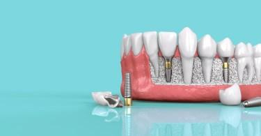 Sve o zubnim implantatima