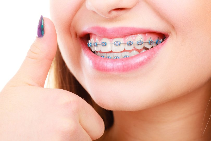 Fiksni aparatic za zube