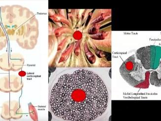трансплантация на човешка глава