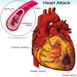 Sulmi në zemër – patjetër të lexohet dhe shpërndahet mund të shpëtoni jetë! (VIDEO)