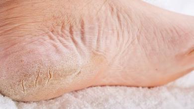 Photo of Recetë e vjetër popullore: Shëroni këmbët e plasaritura brenda një nate