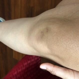 Bruise-5