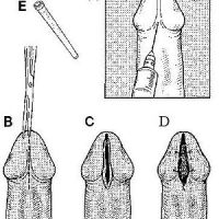 Brief overview of a meatotomy