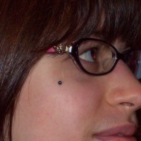 More healed dermal anchors
