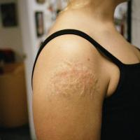 Tattoo removal gone wrong....