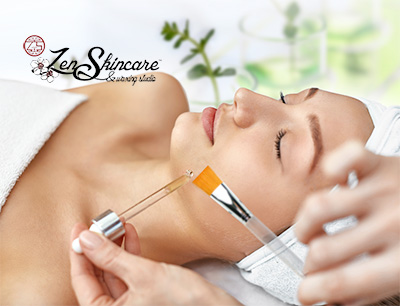 Chemical Peel Exfoliation Service at Zen Skincare Asheville, NC.