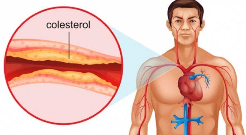 Simptomat e kolesterolit të lartë që nuk duhet të injoroni kurrë - Lajmet e  fundit - Zëri
