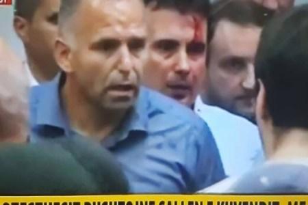 Kaos në Maqedoni, gjakoset kreu i opozitës
