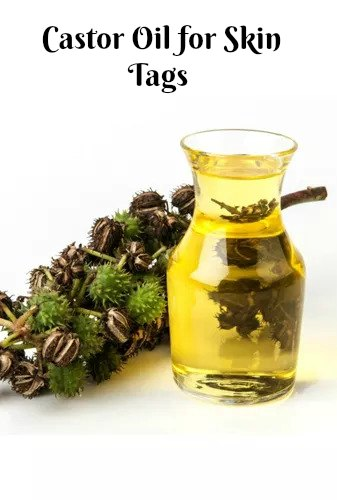 Castor Oil for skin tags -How to Get Rid of Skin Tags-10 Easy Natural Painless Ways