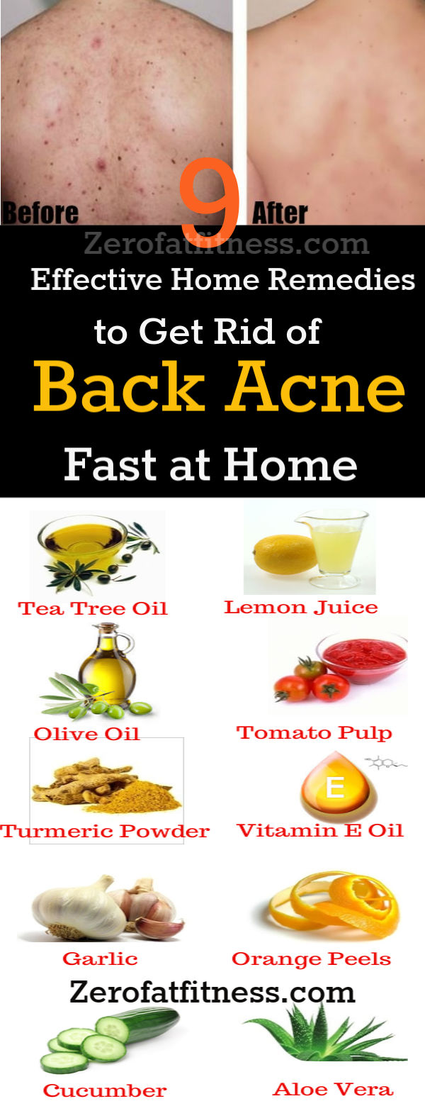 How To Get Rid Of Back Acne Overnight At Home 9 Natural Remedies