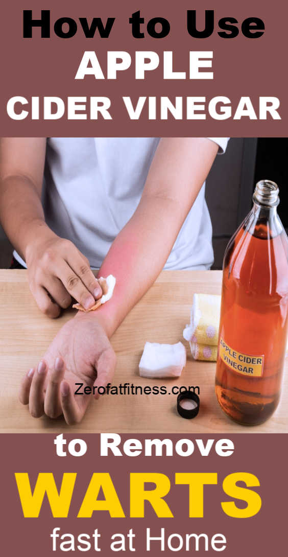 How to Use Apple Cider Vinegar to Remove Warts Fast at Home. Effective home remedies to try for warts treatment.