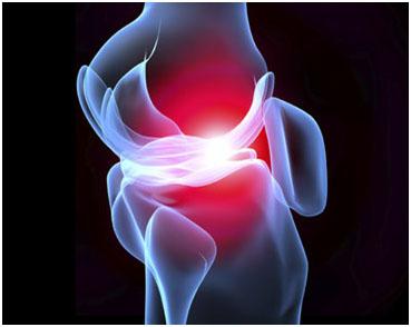 Οστεοαρθρίτιδα γόνατος Οστεοαρθρίτιδα γόνατος osteo1 00