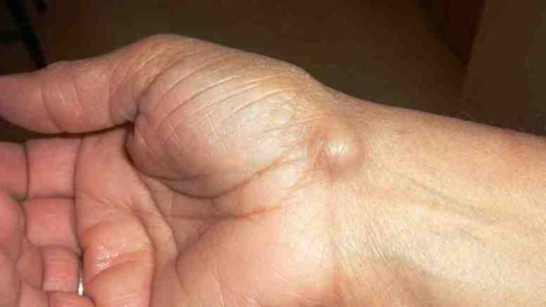 What is a ganglion cyst? 1