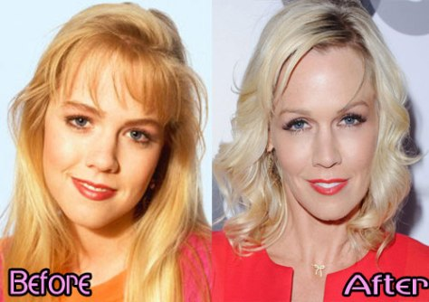 jennie-garth-nose-job-before-and-after