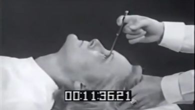 Photo of A Disturbing History Of Lobotomies; Why Most Were Performed On Women