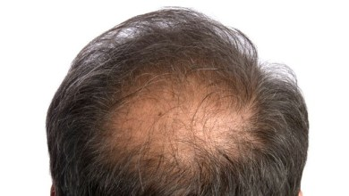Photo of Male Pattern Baldness : Digging Deeper Into The Mystery