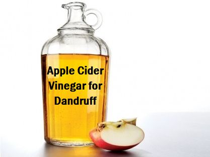 apple-cider-vinegar-for-dandruff