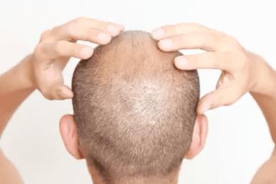 Rescue Hair 911 Reviews - PhytAge Labs Hair Loss Formula 2