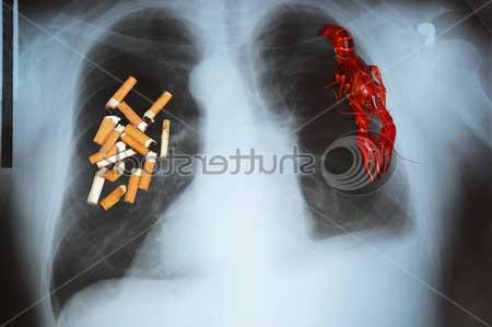 Если вам дорого ваше здоровье, то бросайте курить