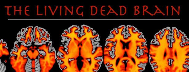 living-dead-brain