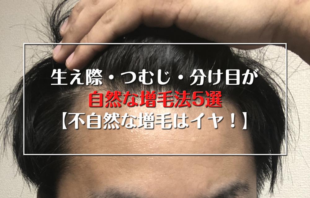 生え際・つむじ・分け目が自然な増毛法5選【不自然な増毛はイヤ!】