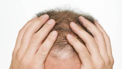 ¿se-te-ha-caido-el-pelo-mas-de-lo-normal?-los-efectos-de-2020-en-la-salud-de-tu-cabello
