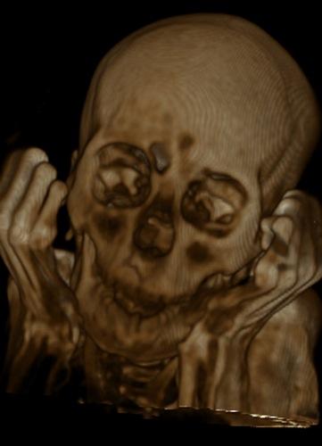 Resultados da ressonância magnética feita em múmia peruana