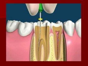 Может ли болеть зуб после удаления нерва. Почему зуб реагирует на горячее после удаления нерва и что с этим делать