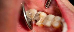 Как используют мышьяк в стоматологии. Лечимся ядом — зачем в зуб кладут мышьяк