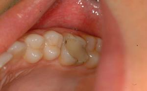 Какой врач ставит пломбы на зубы. Как называется врач который вставляет зубы, ставит коронки и брекеты, удаляет зубы. Можно ли поставить пломбу самому