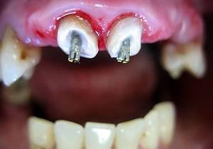 Наращивание зуба на штифт: показания, технология, цена