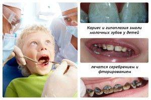 poate dintele rău să provoace pierderea în greutate)