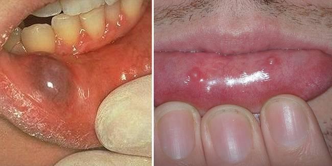 átlátszó hólyag a szájban