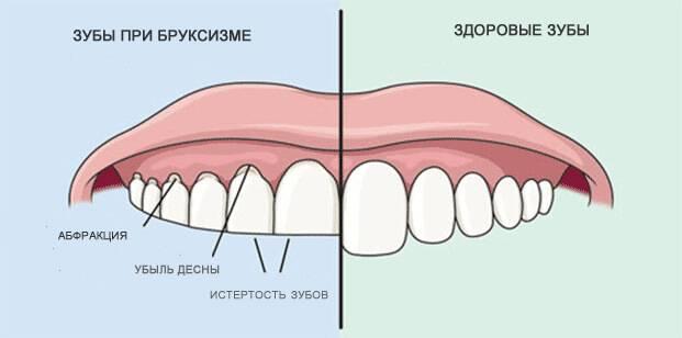 hogyan kapcsolódik a fogcsikorgatás a férgekhez