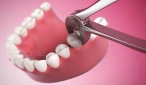 После удаления зуба опухла губа у ребенка