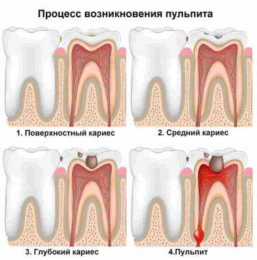Болит зуб без нерва возможные причины и методы лечения