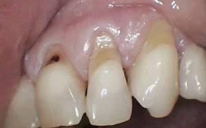 Оголение шейки и корней зубов. Голые, но не смешные: почему оголяются шейки зубов и чем это грозит