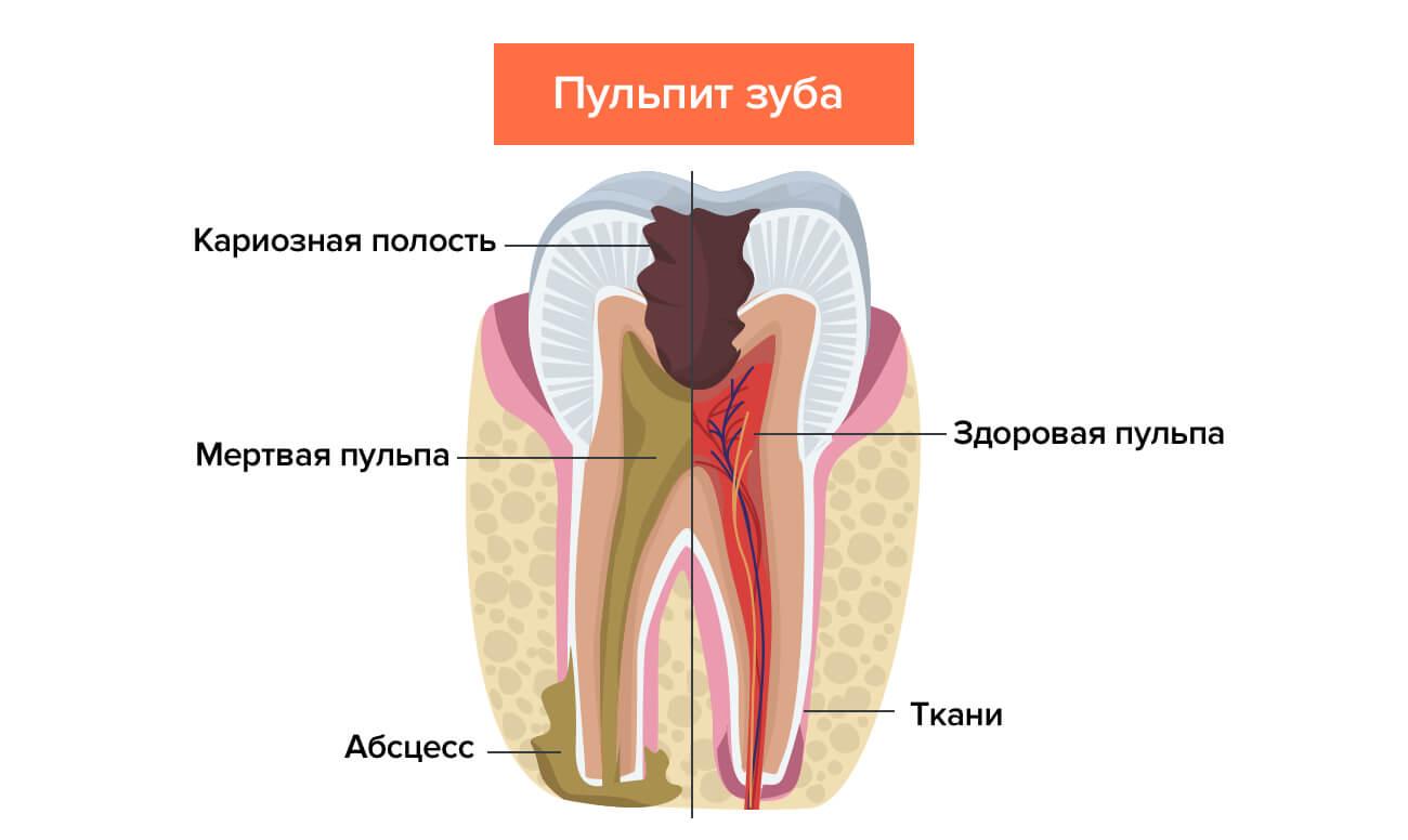 Как правильно принимать Найз чтобы избавиться от зубной боли